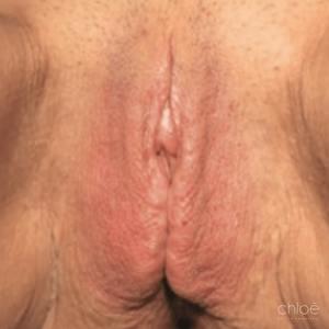 Traitement de l'atrophie vaginale avec Renovalase après Clinique Chloé