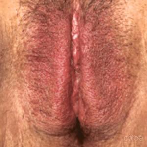 Le laser Renovalase est un traitement efficace contre l'atrophie vaginale après Clinique Chloé