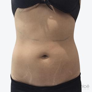 Remodelage de l'abdomen avec le Hot Sculpting après Clinique Chloé