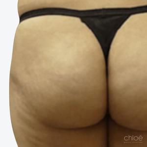 Augmentation des fesses avec injections de Sculptra avant Clinique Chloé