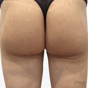Lifting des fesses sans chirurgie avec Sculptra après Clinique Chloé