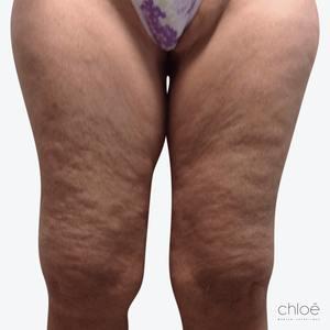 Éliminer la cellulite avec le TightSculpting avant Clinique Chloé