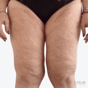 Combattre la cellulite sans chirurgie avec le TightSculpting après Clinique Chloé