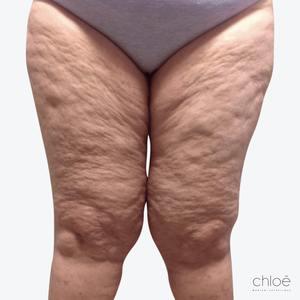 Réduire la cellulite avec le TightSculpting avant Clinique Chloé