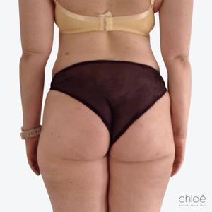 Traiter la cellulite des fesses à l'aide du TightSculpting après Clinique Chloé