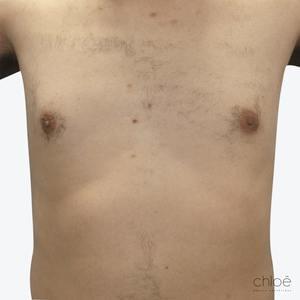 Il est possible de se débarrasser des poils du torse de façon permanente grâce au Venus Versa IPL après Clinique Chloé