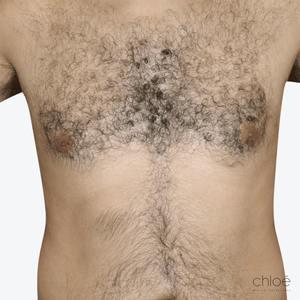 Se débarrasser des poils du torse à l'aide du Venus Versa IPL avant Clinique Chloé