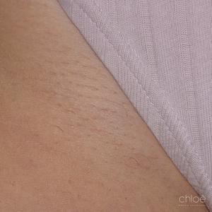 Élimination définitive des poils de la zone du bikini avec le Venus Versa IPL après Clinique Chloé