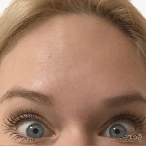 Traitement des rides du front avec Botox après Clinique Chloé