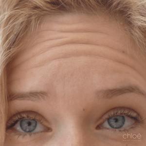 Se débarrasser des rides du front avec traitement Botox avant Clinique Chloé