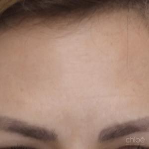 Atténuer les rides du front à l'aide du Botox après Clinique Chloé