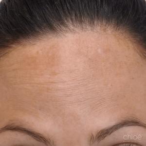 Diminution des rides du front à l'aide d'injections de Botox après Clinique Chloé
