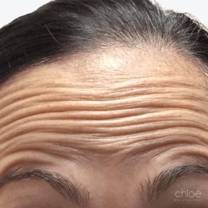 Enlever les rides du front avec Botox avant Clinique Chloé