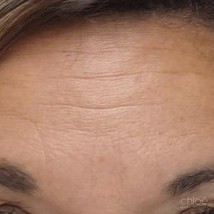 Avoir moins de rides dans le haut du visage à l'aide de Botox après Clinique Chloé