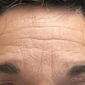 Dites adieu aux rides de froncement grâce au Botox avant Clinique Chloé