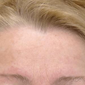 Atténuer les rides de la glabelle avec un traitement de Botox après Clinique Chloé