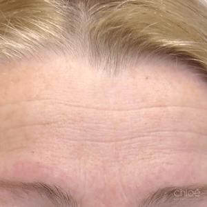 Moins de rides entre les sourcils avec Botox avant Clinique Chloé