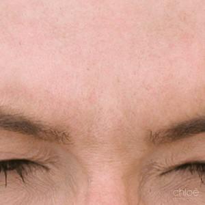 Froncez moins fort à l'aide de Botox après Clinique Chloé