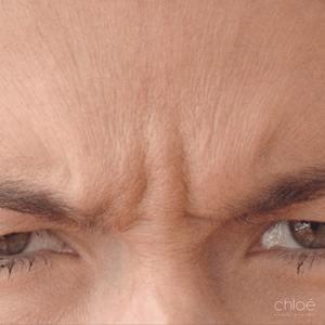 Diminuer le froncement avec l'aide d'injections de Botox avant Clinique Chloé