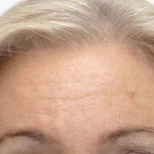 Traitement des rides et ridules avec Botox avant - Clinique Chloé