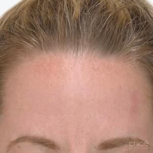 Traitement des rides et ridules avec Botox après - Clinique Chloé