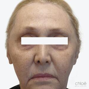 Enlever les rides et ridules du visage à l'aide des agents de comblement avant Clinique Chloé