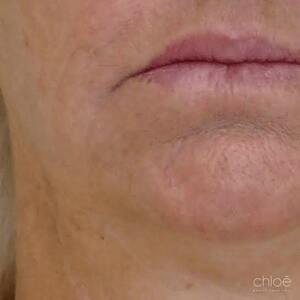 Se débarrasser des rides du bas du visage avec des injections d'acide hyaluronique après Clinique Chloé