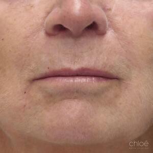 Lifting non chirurgical du bas du visage avec des agents de comblement après Clinique Chloé