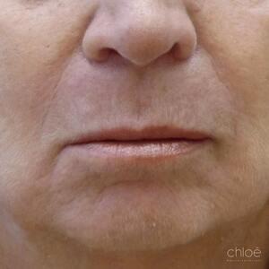 Atténuer les rides et ridules du bas du visage avec des injections d'acide hyaluronique avant Clinique Chloé