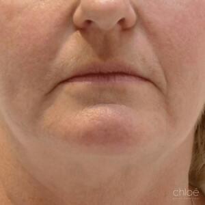 Diminuer l'apparence des sillons nasogéniens grâce aux injections d'acide hyaluronique avant Clinique Chloé