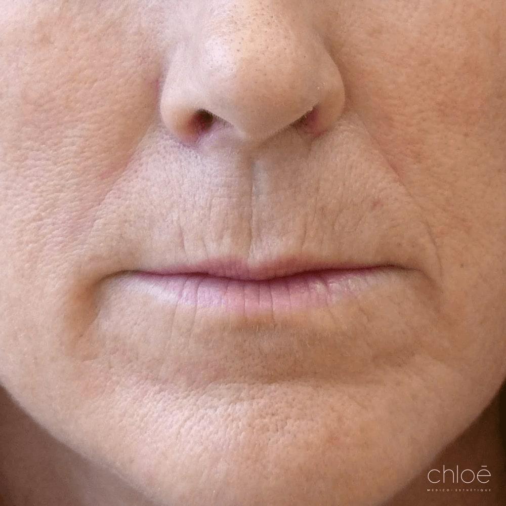 Diminuer l'apparence des rides et ridules autour de la bouche avec des injections de Skin Boosters avant Clinique Chloé