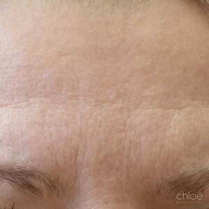 Diminuer l'apparence des rides et ridules du visage avec Venus Versa IPL avant Clinique Chloé