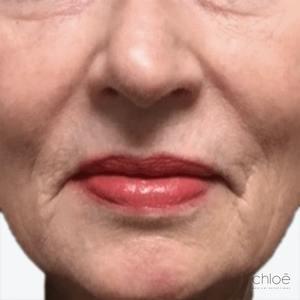Réduire l'apparence des rides et ridules avec peeling chimique avant Clinique Chloé