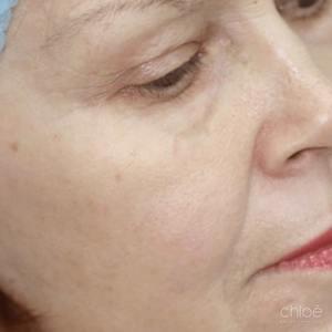 Traitement des rides et ridules autour des yeux avec laser fractionné après Clinique Chloé
