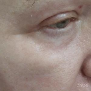 Éliminer rides pourtour des yeux avec laser fractionné après Clinique Chloé
