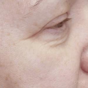 Enlever rides pourtour des yeux avec laser fractionné avant Clinique Chloé