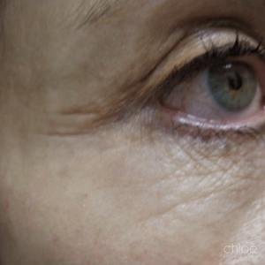 Le laser fractionné fait disparaître les rides autour des yeux après Clinique Chloé