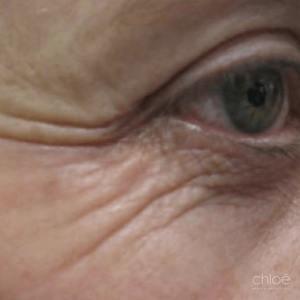 Se débarrasser des rides et ridules autour des yeux grâce au laser fractionné avant Clinique Chloé