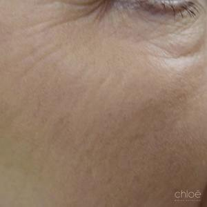 Traiter les pattes d'oie avec le laser fractionné après Clinique Chloé