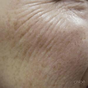 Le laser fractionné est un traitement efficace contre les pattes d'oies avant Clinique Chloé