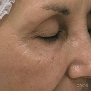 Traitement non chirurgical des pattes d'oie avec le laser fractionné après Clinique Chloé