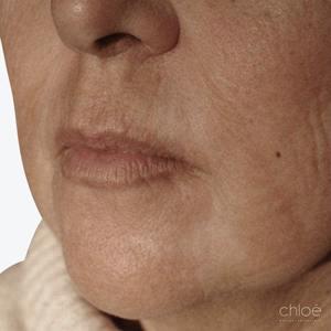 Atténuer rides du fumeur avec laser fractionné après Clinique Chloé