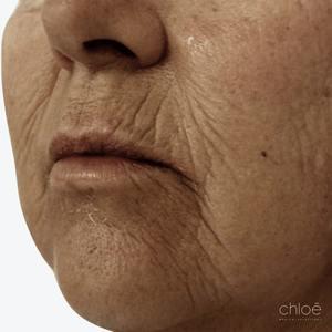 Peau d'apparence plus jeune grâce au laser fractionné avant Clinique Chloé