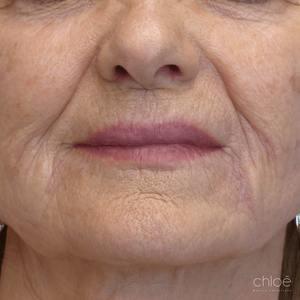 Diminution de l'apparence des rides autour des yeux avec le laser fractionné après - Clinique Chloé