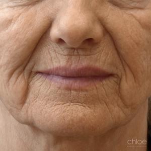 Traitement des rides et ridules autour des yeux avec laser fractionné avant - Clinique Chloé