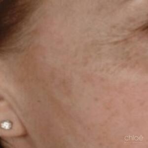 Diminuer l'apparence des rides et ridules avec microneedling avant Clinique Chloé