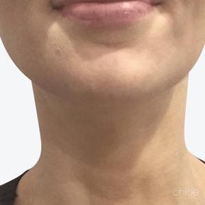 Traitement du Tonus du cou avec injections de Botox après - Clinique Chloé