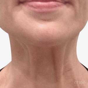 Raffermir le cou avec le Botox avant Clinique Chloé