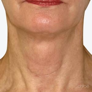 Remonter la peau du cou avec les neuromodulateurs Venus Viva après Clinique Chloé