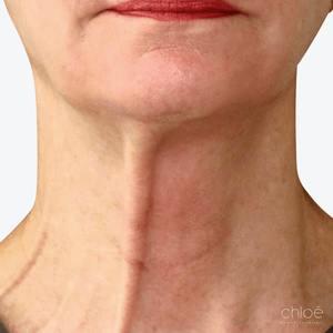 Le tonus du cou traité par le Botox avant Clinique Chloé